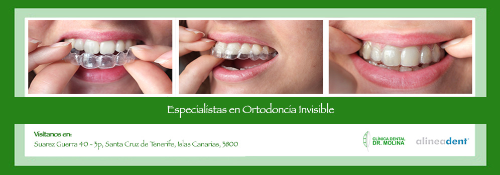 Nuestro equipo se certifica en Ortodoncia Invisible Alineadent