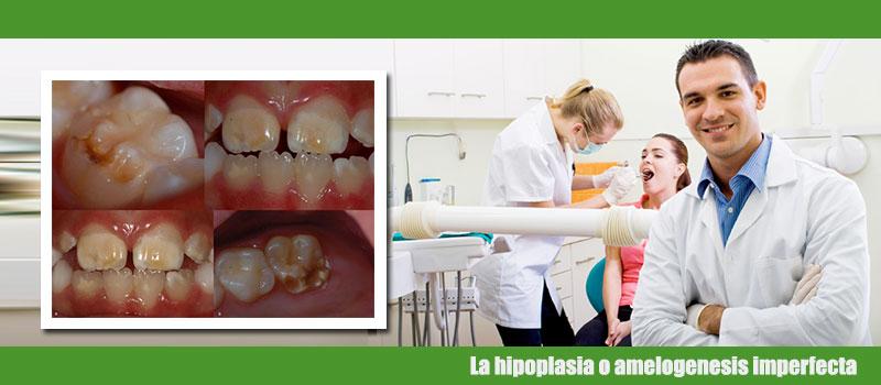 La hipoplasia o amelogenesis imperfecta