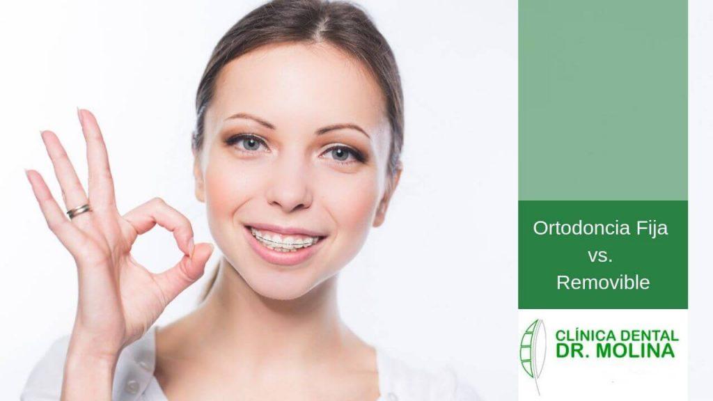 Ortodoncia Fija vs. Removible_Clinica dental Tomas Molina en Tenerife